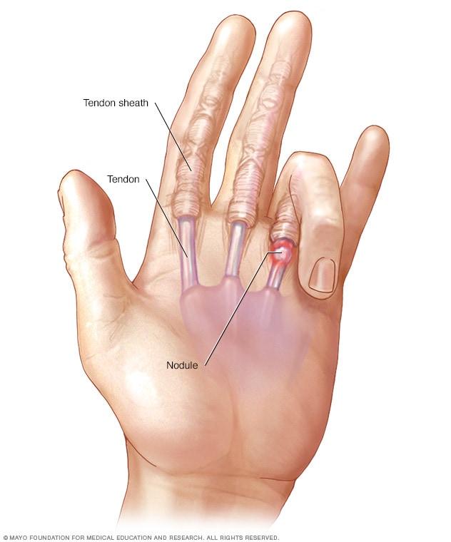 Why do women finger themselves