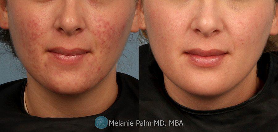 Red facial scar